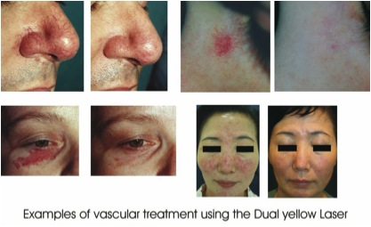 Examples of vascular treatment using the Dual Yellow Laser