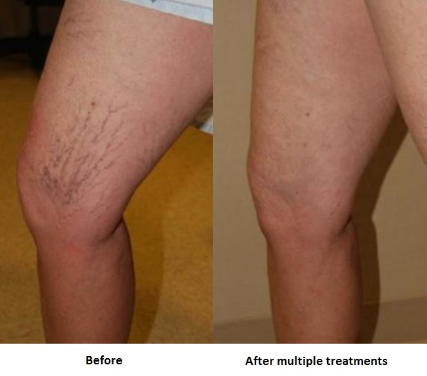Micro Sclerotherapy Manchester Vein Clinic