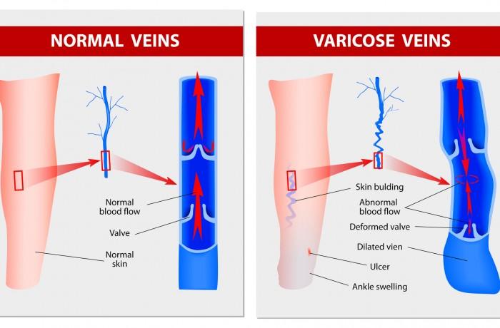 Varicose Veins : Manchester Vein Clinic
