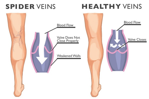 Spider veins compared to helthy veins